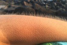 Photo of Husí kůže nám naskakuje, abychom vypadali větší