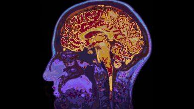 Photo of Lidský mozek pojmenoval sám sebe